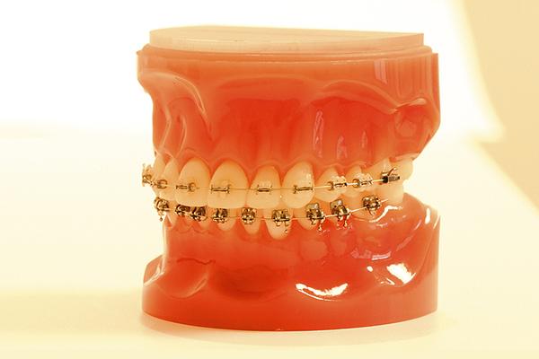 """Festsitzende Apparaturen: Die """"feste Spange"""" dient der Korrektur der Zahnstellung und der Feineinstellung der Verzahnung."""