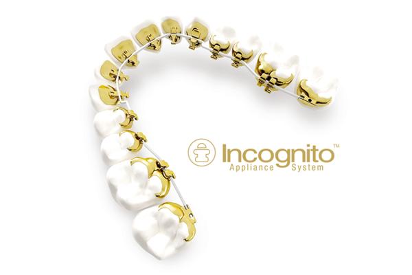 """Incognito: Die innen geklebte feste Apparatur ist die """"unsichtbare"""" Alternative zur normalen """"festen Spange"""". Das technisch ausgereifte System erlaubt auch die Therapie komplexer Behandlungsfälle."""
